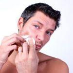 acne-creatina